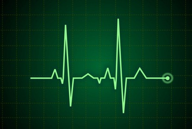ekg_heart_rate_pulse-other-615x413