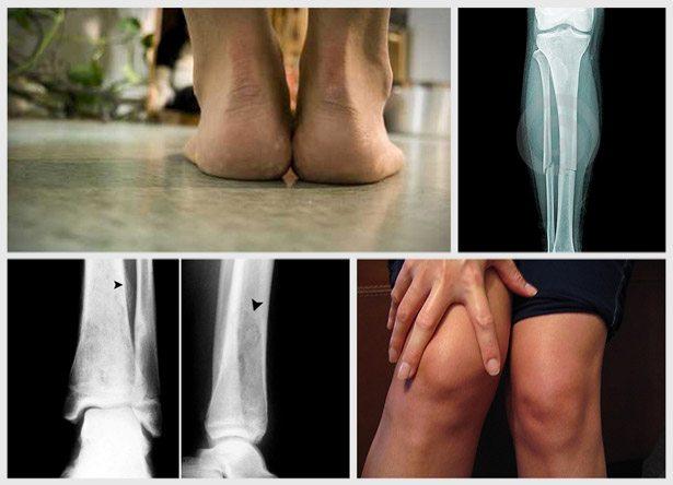 Sprečite 5 najčešćih povreda u trčanju