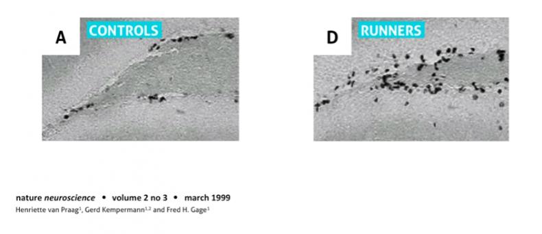 Miševi netrkači imaju manje neurona(crne tačkice) u odnosu na miševe trkače