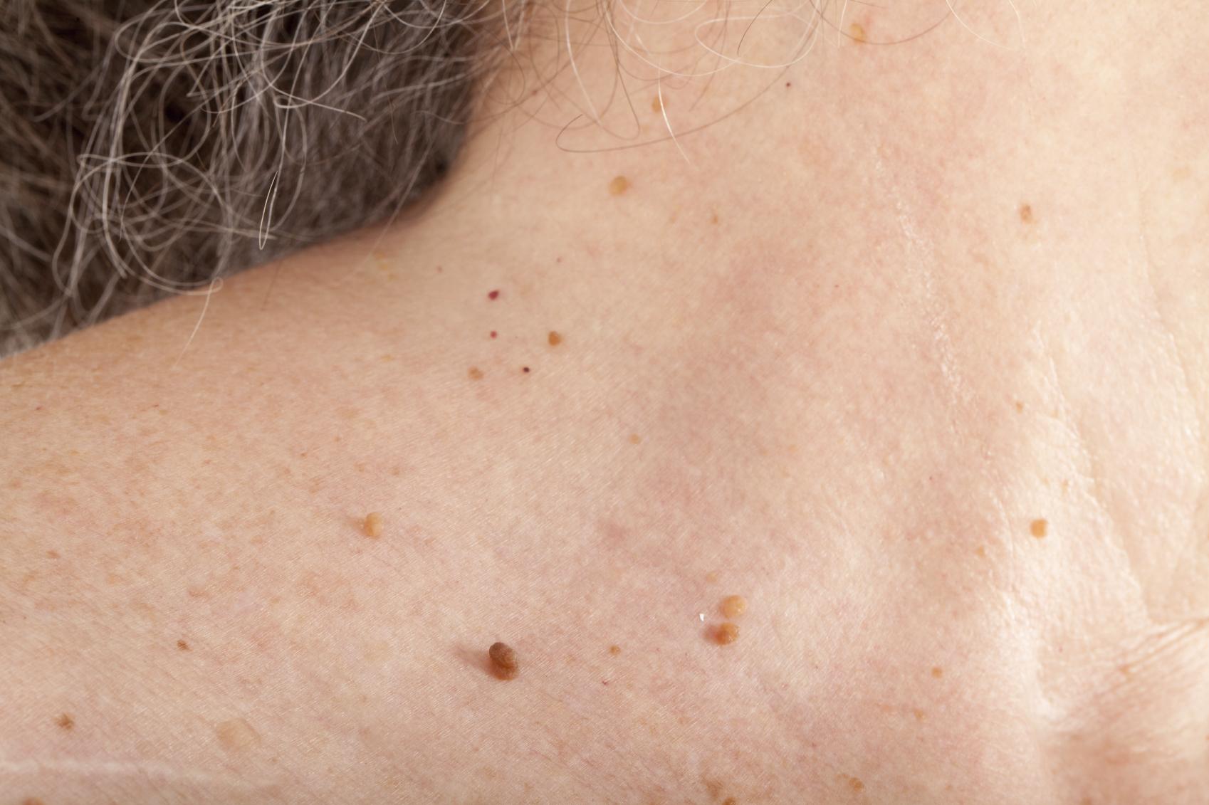 skin-tags